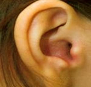 Viêm ống tai ngoài - Biểu hiện & Điều trị